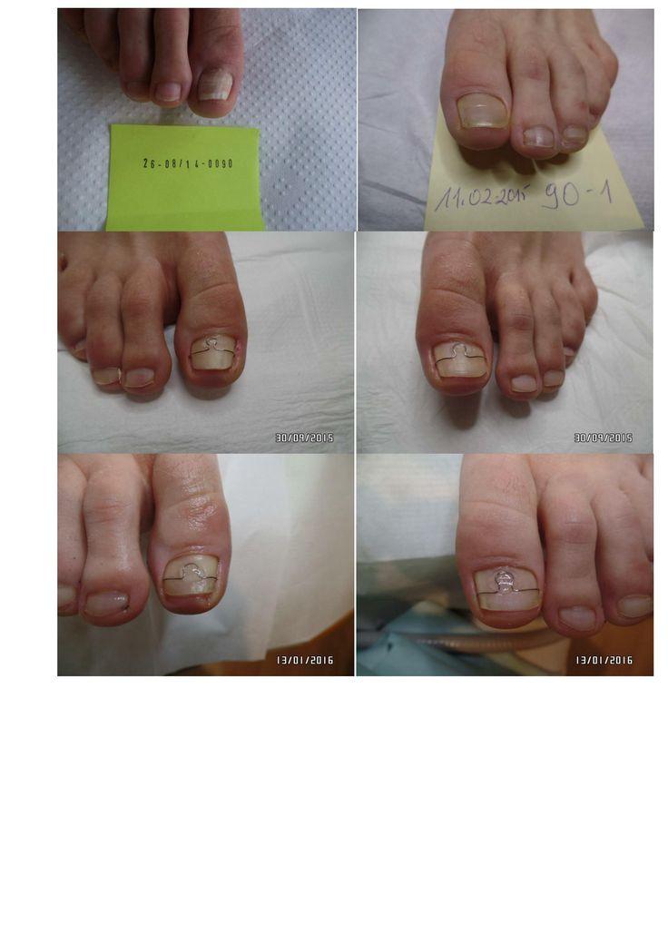 The 17 best Korekta wrastających paznokci-Correction of ingrown nail ...