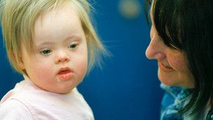 Downs Syndrome genetic advance