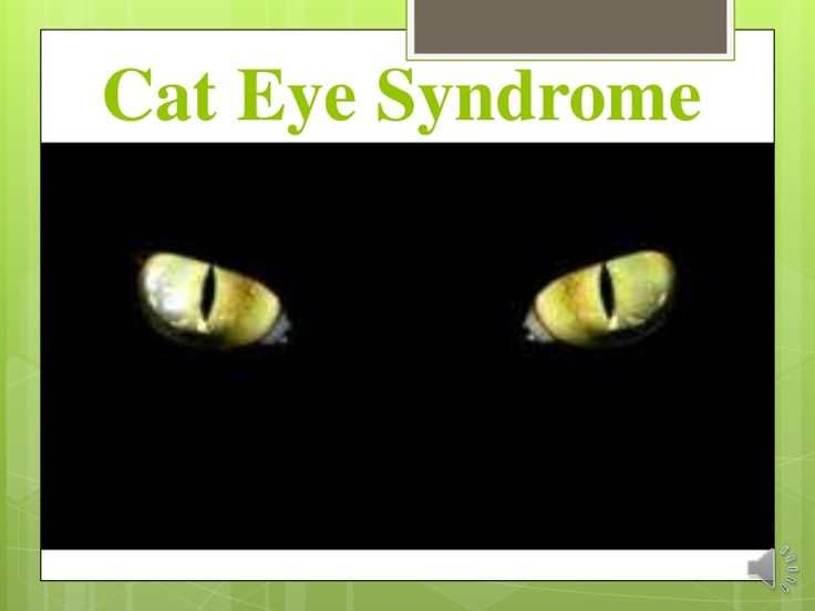 Cat Eye Syndrome