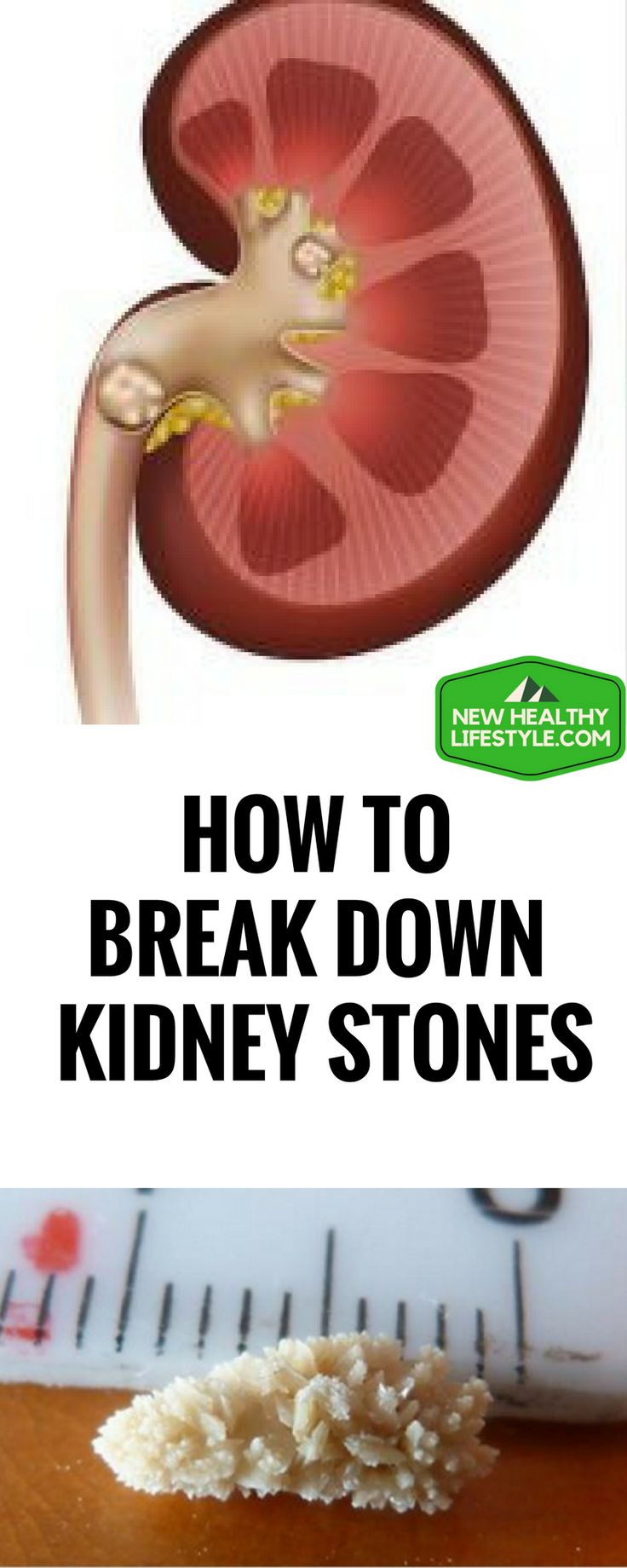 HOW TO BREAK DOWN KIDNEY STONES AND KILL BLADDER INFECTION WITH THIS ONE-INGREDIENT JUICE ``1