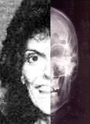 Death+of+Karen+Carpenter