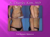 http://www.kcharleskim.com/procedures/body-procedures/post-weight-loss-cosmetic-surgery/