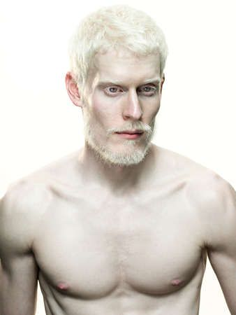 Handsome albino model Stephen Thompson rocking a beard.