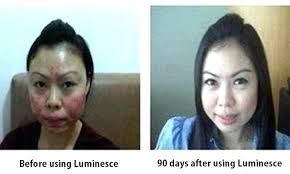 have scars or face injuries? try Luminesce now!