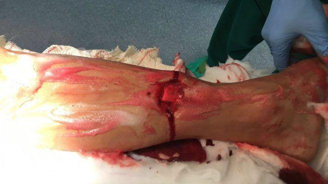 La escalofriante imagen de la pierna rota del ciclista José Joaquin Rojas