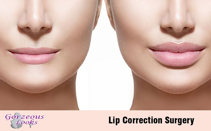 Lip #Augmentation Surgery. Lip #Surgery for #Lip augmentation with Filler or Fat for Thin #Lips.. Here is an example of lip #enlargement or lip enhancement with autologus #fat injection. Lip augmentation with autogenous fat graft before after picture...
