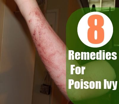 8 Top Herbal Remedies For Poison Ivy | http://www.searchhomeremedy.com/top-herbal-remedies-for-poison-ivy/