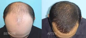 Struggling with Hair Loss? Doctors of Hair is the leading provider of solutions for men and women in the greater Las Vegas area, offering Laser Hair Therapy, Neograft and Innovative Hair Restoration solutions.