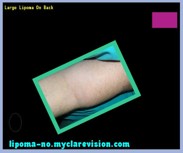 Large lipoma on back - Truth About Lipoma. You have nothing to lose! Visit Site Now
