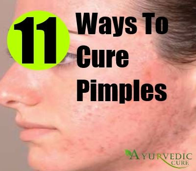 How To Cure Pimples