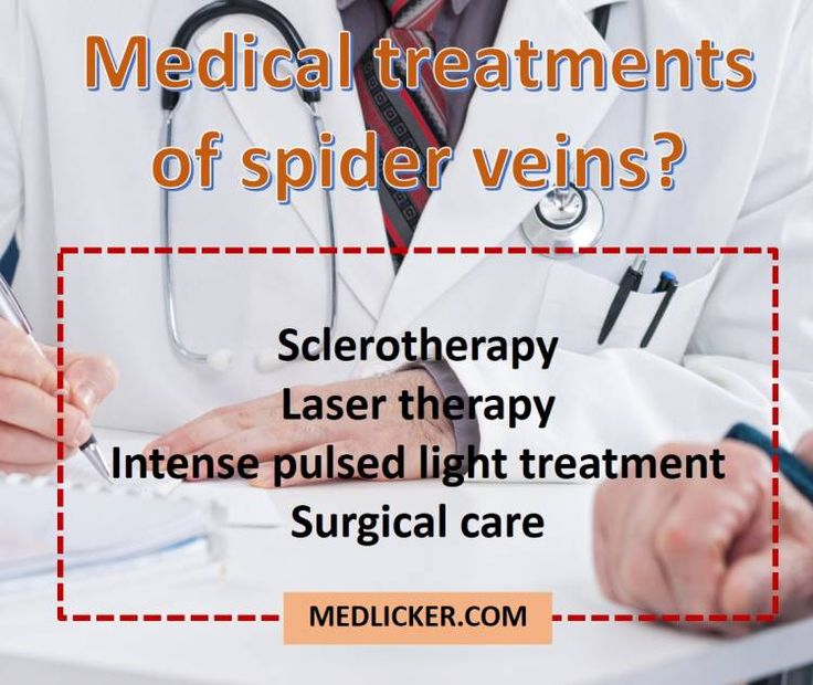 Overview of medical treatments for spider veins