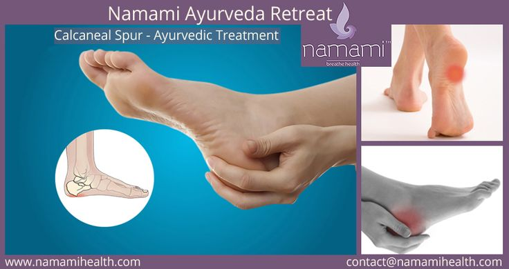 Calcaneal Spur - Ayurvedic Treatment