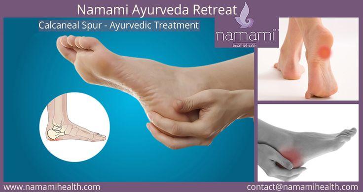 Calcaneal Spur - Ayurvedic Treatment