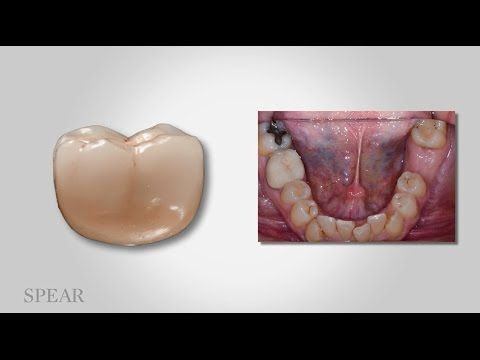 Esthetics and Function for Posterior Implants on YouTube: Dr. Darin Dichter introduces concepts critical for predictable success with posterior single tooth implant restorations.