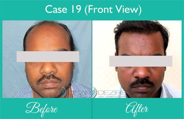 Hair Implantation done at Dezire Clinic Pune. Visit our website to know details of Hair Implantation Cosmetic Surgery in India, Cost of Hair Implantation. Call on 9222122122 for free consultation.