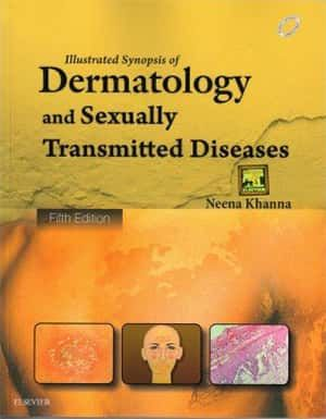 Dermatology Secrets Plus Pdf