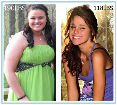 We need to maintain the planning and executing on weight loss plan as both are important. Weight loss is not a hard task, but to maintain and stay on weight loss program is quite challenging. Generally the people indulge with the weight loss program to loose their weight in a quick time with a heavy quantity. But it is not good for our health. Read More...