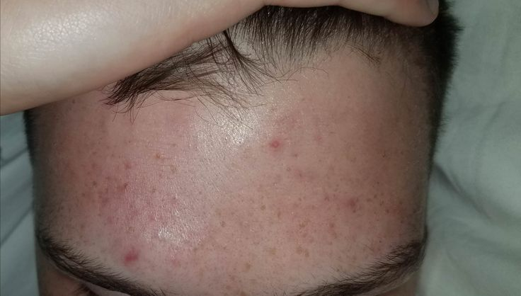 [Routine Help] any advice for red splotchy skin?