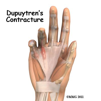 Physical Therapy in Fernley for Hand - Dupuytrens Contracture