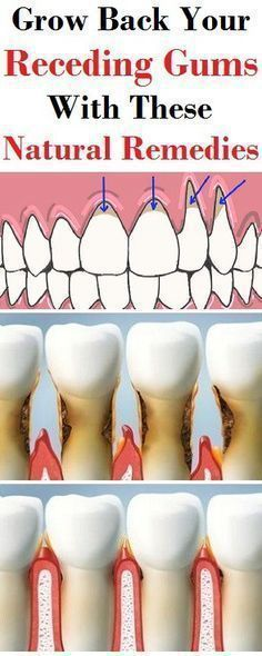 GROW BACK YOUR RECEDING GUMS WITH THESE NATURAL REMEDIES ! #NaturalRemedies #Beauty #Gums #Grow