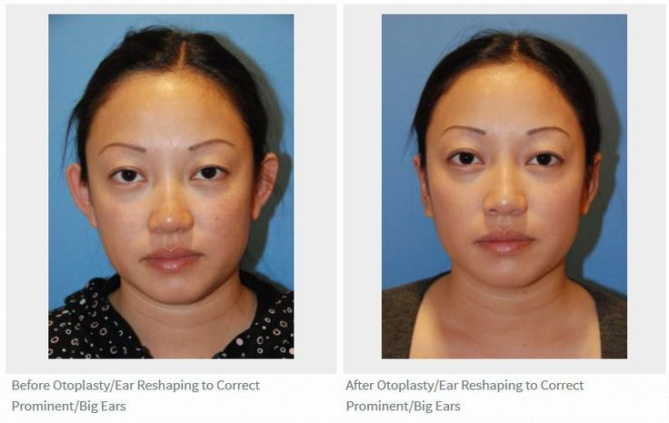 Seattle | Bellevue otoplasty ear plastic surgery for prominent ears before and after