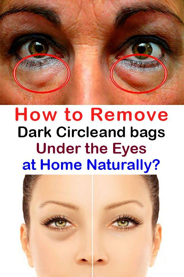 31130db6b68741814895459d8a16861e - How To Get Rid Of Tired Looking Eyes Naturally