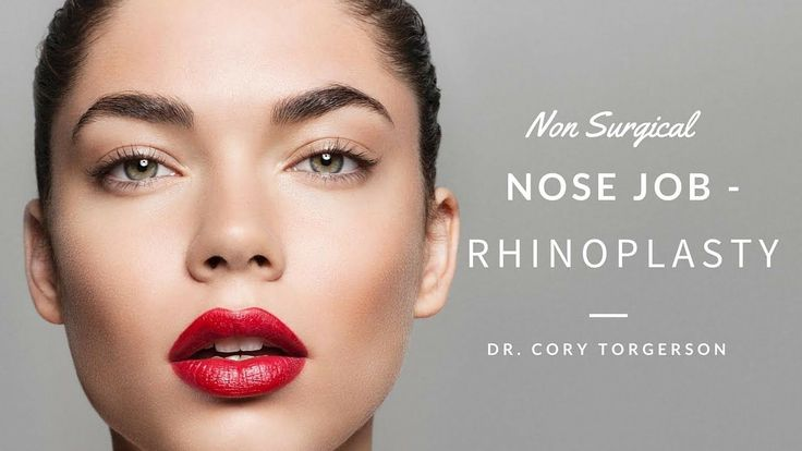 Non Surgical Nose Job- Rhinoplasty | Toronto – Dr….