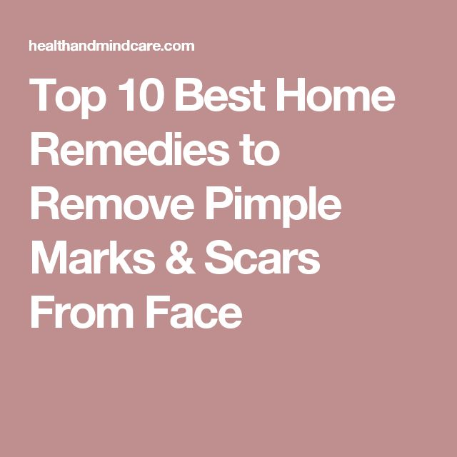 Top 10 Best Home Remedies to Remove Pimple Marks & Scars From Face