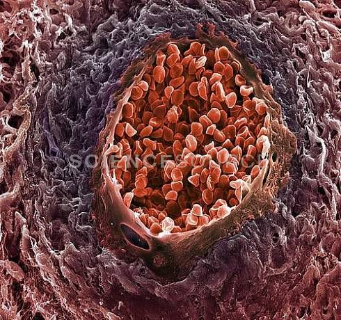 Angiogenesis in Ovarian Cancer. SEM of a section through a small blood vessel in a cancer of the ovary. Red blood cells are seen in the central space. Cancer is uncontrolled cell replication, and the rapidly growing tumor requires extra blood supply for this growth. The presence of excessive amounts of blood vessels (angiogenesis) is one sign of cancer. Magnification: x400 when printed 10cm wide. © SPL/Science Source