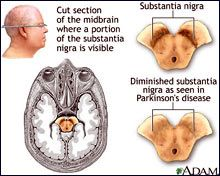 Medical illustration of diminished substantia nigra as seen in Parkinsons disease