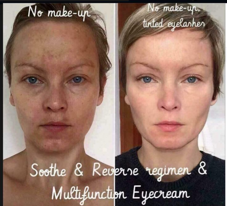 rodan and fields before and after