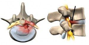 Hernie discale lombaire (conflit avec le nerf sciatique)