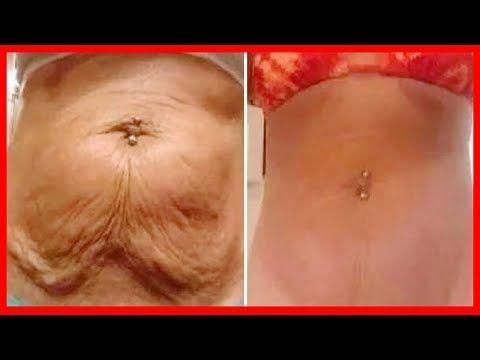 Esta Mulher Lavou Sua Cara Com Isso 3 Dias e Eliminou TODAS RUGAS E LINHAS FINAS DO PESCOÇO! - YouTube