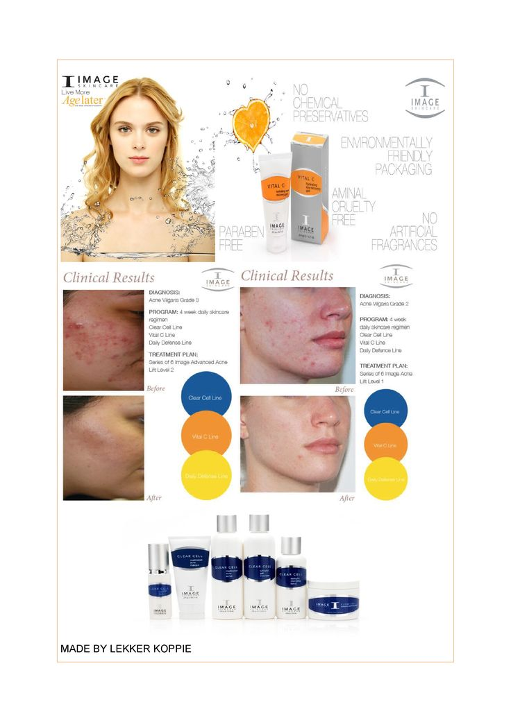 Image Skincare - I put all my acne prone patients on this line along with treatments