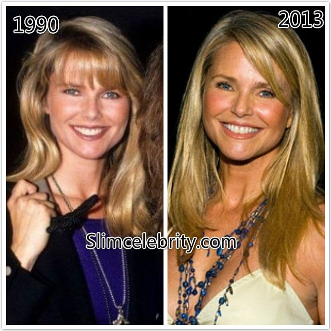 Christie Brinkley Plastic Surgery Before and After Photos ...