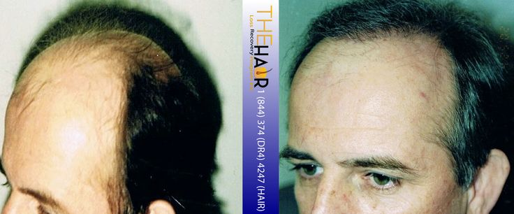 Click to enlarge image 6 hair transplant before and after.jpg