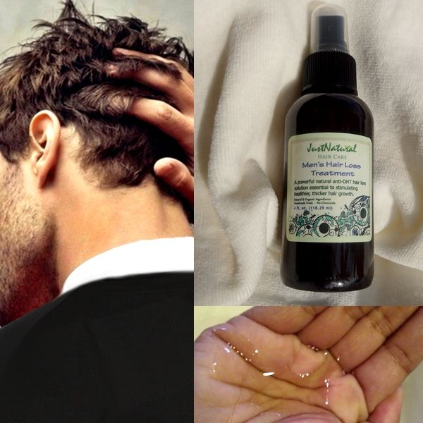 This natural hair loss treatment for men has everything your hair needs. It takes a few months for you to notice anything, but my hair is definitely growing faster and fuller.