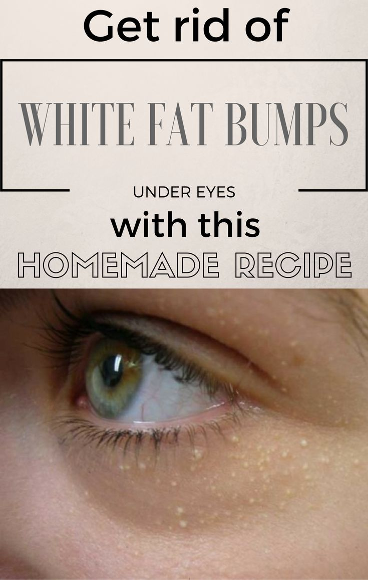 Incisions are painful so that's why this recipe is very useful for this unaestethic fat bumps.