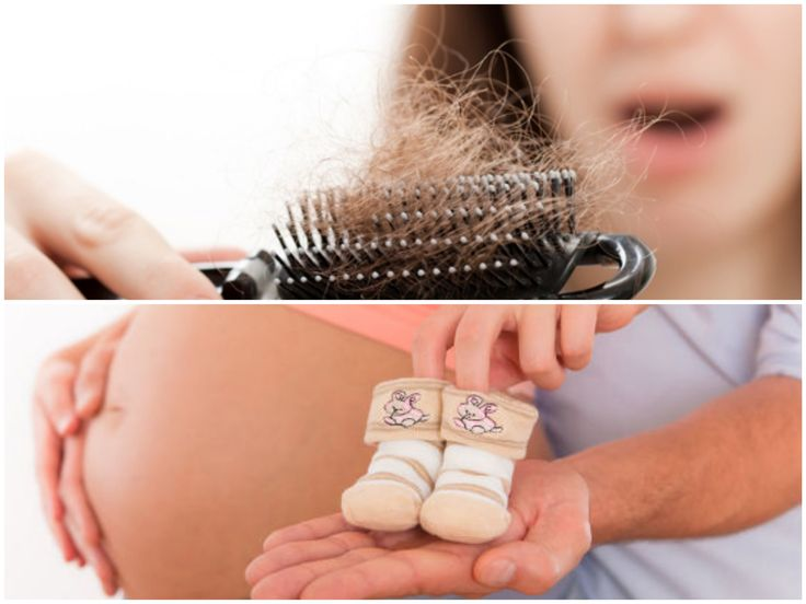 Why do people talk about hair loss and pregnancy?  The most common period of hair loss occurs approximately three months after birth. Increasing hormones during pregnancy prevents you from losing your hair. After birth, hormones return to normal levels and allow hair to fall off and return to normal circulation. Normal hair loss, which is delayed during pregnancy, can occur at once.