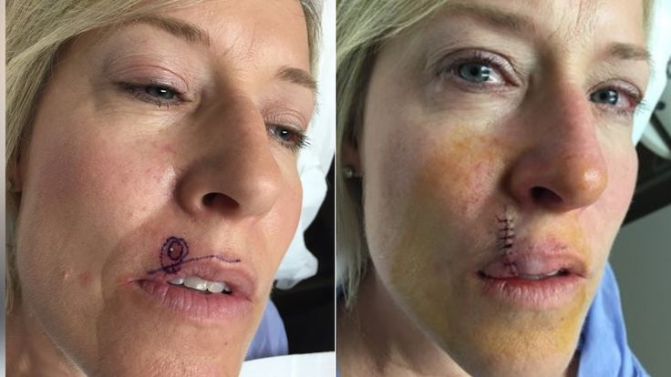 Skin cancer check: Small pimple above woman's lip …