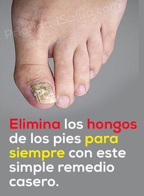 ¿Tienes hongos en los pies? Estos remedios eliminan los hongos en las uñas de los pies, onicomicosis, uñas amarillas, inflamación y el mal olor de los pies.