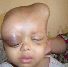 Iraq Is Now A Radioactive Wasteland - Depleted Uranium Is Starting To Take Its Toll Upon The Civilian Population
