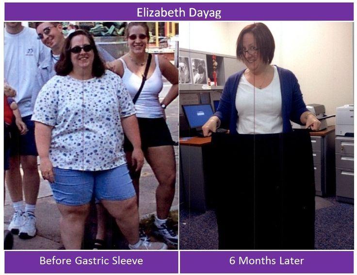Medi weight loss berwyn hours
