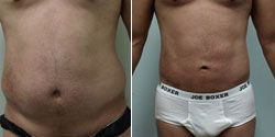West palm beach liposuction #west #palm #beach #liposuction http://san-antonio.remmont.com/west-palm-beach-liposuction-west-palm-beach-liposuction/  # Smartlipo and Tumescent Liposuction (Liposculpture) for the Abdomen SmartLipo in conjunction with Tumescent Liposuction (Liposculpture) is a remarkable method for removing unwanted body fat in the abdomen for our patients in Fort Lauderdale, Miami, West Palm Beach and worldwide. Body Care achieves excellent results through a low pain, highly…
