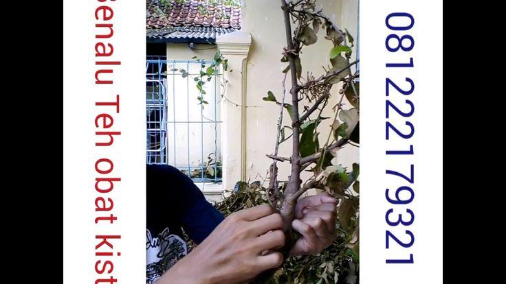 obat kista herbal alami ovarium rahim coklat tradisional 085659344517