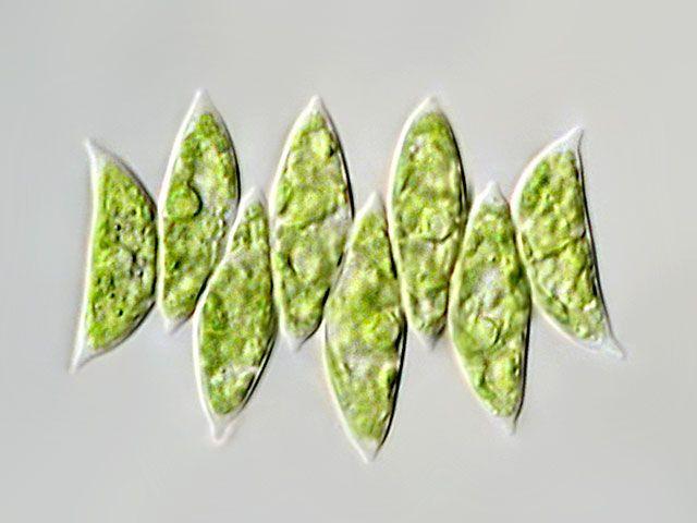 Leben im Teich: die Gürtelalge (Scenedesmus sp.) (Chlorophyta)