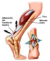 El tendón de Aquiles une los músculos de la pantorrilla con el talón y es propenso lesionarse pues los músculos de la pantorrilla generan fuerzas 12 veces el peso del cuerpo sobre el tendón y carece de buen suministro de sangre x lo que es más lento para recuperarse. La tendinitis Aquilea, ocurre en un 10% de los corredores. La fisioterapia puede ayudar a tratarla.   Para reducir el dolor y la inflamación  en el tendón hay que elevar el pie y aplicar hielo durante 10 ó 20 min, 2 a 3