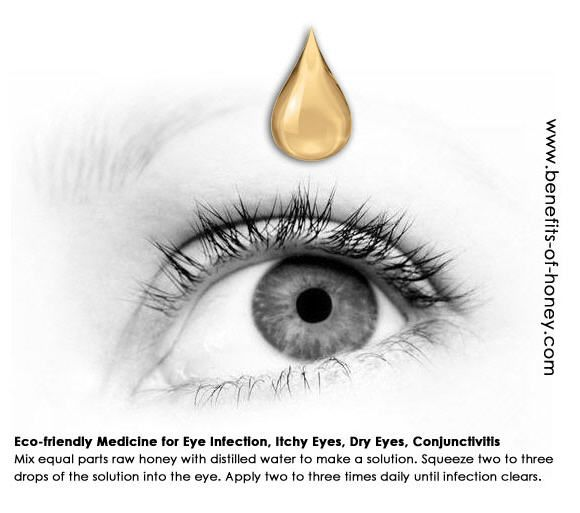 Honey For Eye infection, Dry eyes, Itchy eyes, Conjuncitivitis *Mix equal parts raw honey with distilled water to make a solution. Squeeze two to three drops of the solution into the eye. Apply two to three times daily until infection clears.