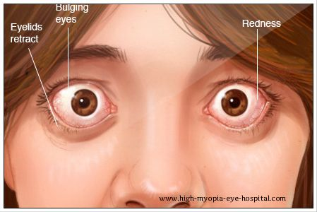 Eyes that extend, or bulge out of their normal location, could be an symptom of a serious medical problem. Exophthalmos and Proptosis are the medical terms used to describe bulging eyes.