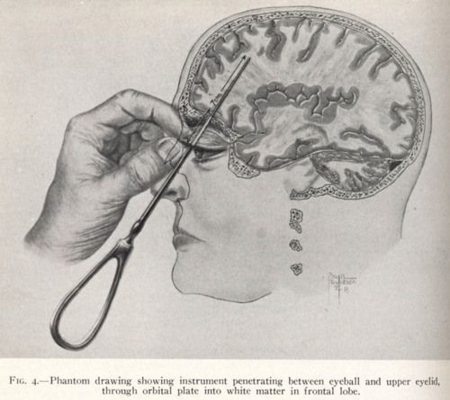 Kings Park Psychiatric Center, Kings Park, NY - Early diagram of the transorbital lobotomy.